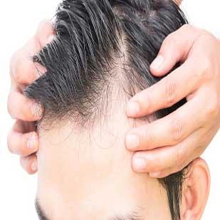 caida-pelo-hombre_2-309x309