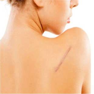 cicatrices-1-309x309