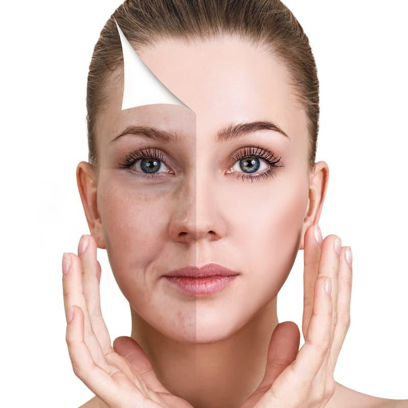 tratamientos-rejuvenecimiento-facial
